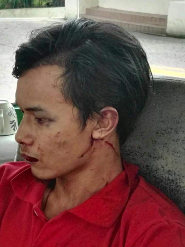 bukit antarabangsa, pemandu lori dipukul, driver lori dipukul, langgar kereta dato,